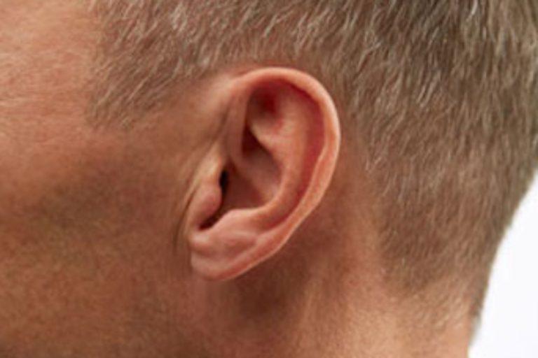Malformación oído interno